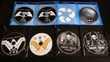 Blu-ray - DC Comics DVD et blu-ray