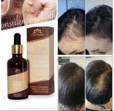 je vous propose un produits anti-chute  de cheveux,100% bio. 1 Boulay-Moselle (57)